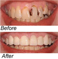 veneers before after
