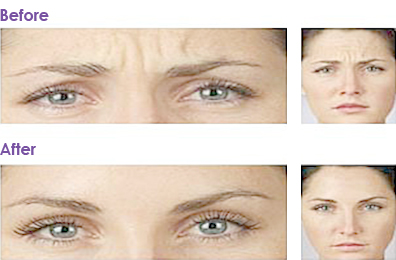 Botox-Anti-wrinkle-Injections