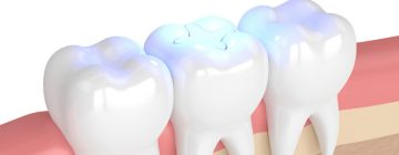 What is a tooth filling?